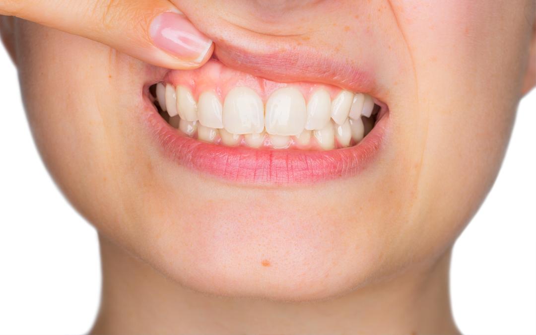 Para tener una boca sana es esencial que mantengas las encías sanas