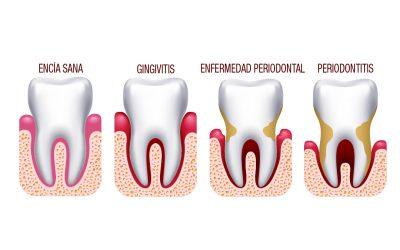 ¿Cuáles son las causas de la enfermedad periodontal?